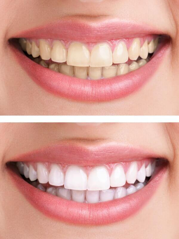 Gula tänder och vita tänder