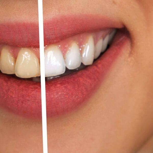 Borsta dig till vitare tänder